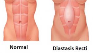 Diastasis Recti Abdominal Separation